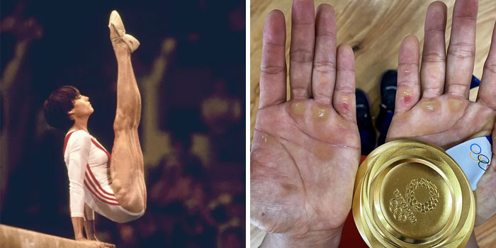 50 Freaky Photos Of Olympians And Other Athletes To Give You A New Perspective On The Human Body