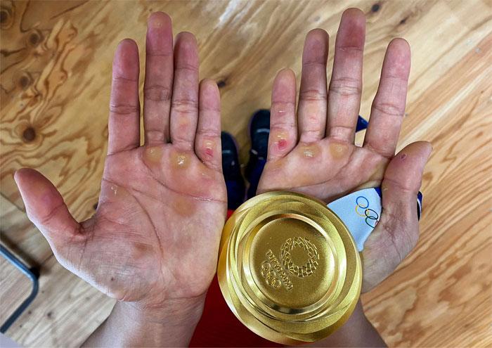 Las manos de Hidilyn Díaz tras ganar la primera medalla de oro olímpica de su país