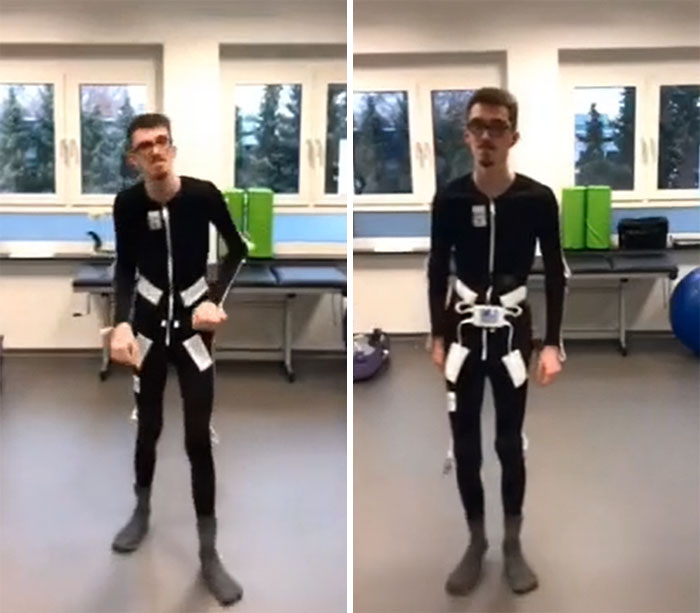 A Swedish Engineer Has Invented A Suit That Will Change The Lives Of People With Parkinson's And Stroke. With The Help Of Electrical Stimulation, It Helps To Get Rid Of Tremors