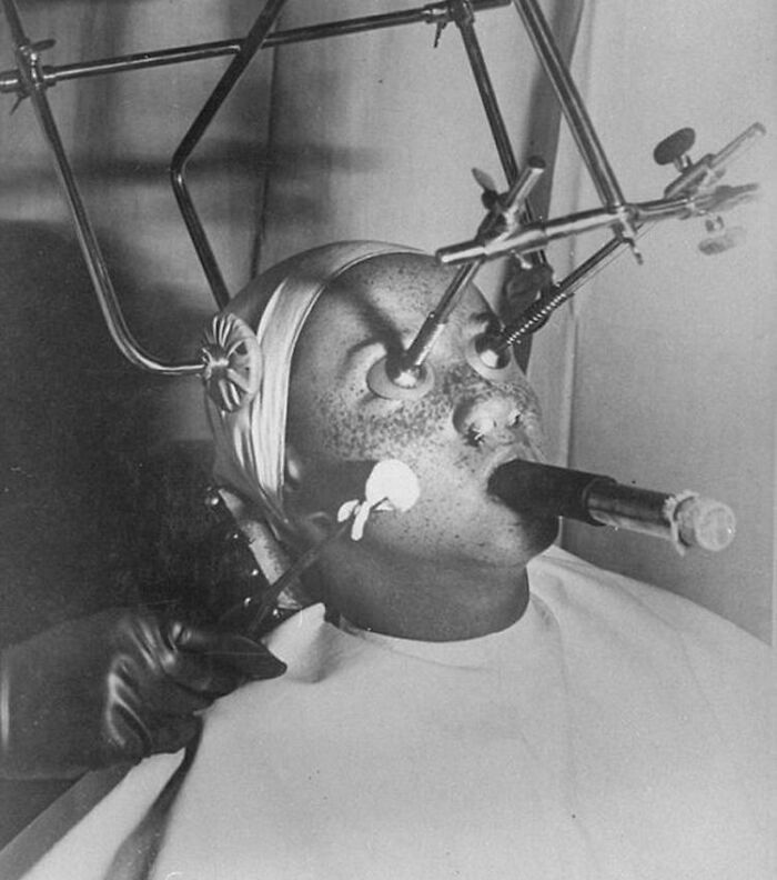 Freezing Off Freckles Procedure In 1930s