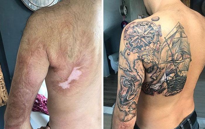 Este tatuaje para cubrir una cicatriz