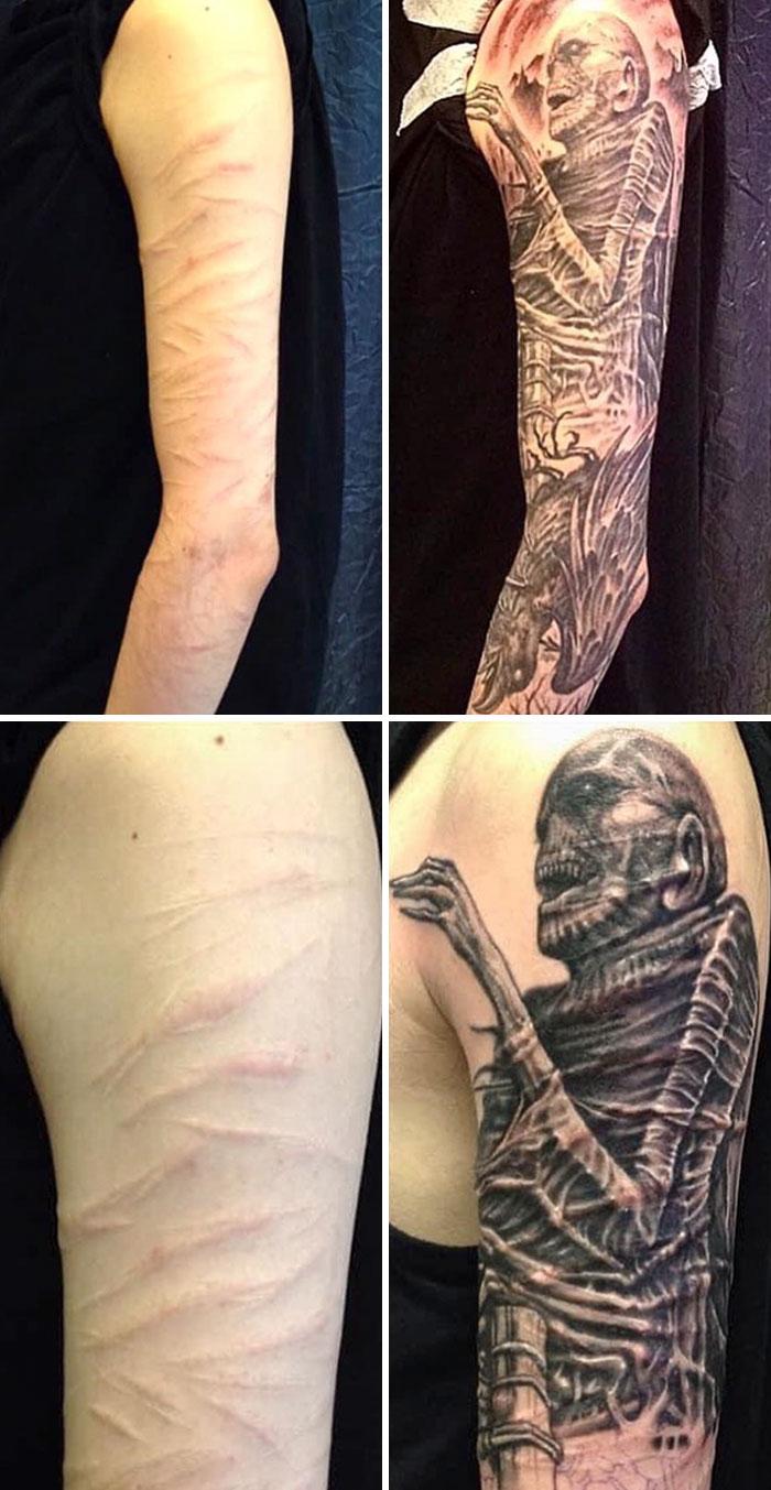 Ninguna cicatriz es imposible, sólo necesitan la solución adecuada
