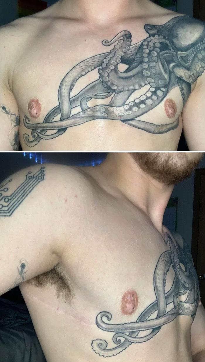 Tatuaje de una cicatriz 3 años después de la operación