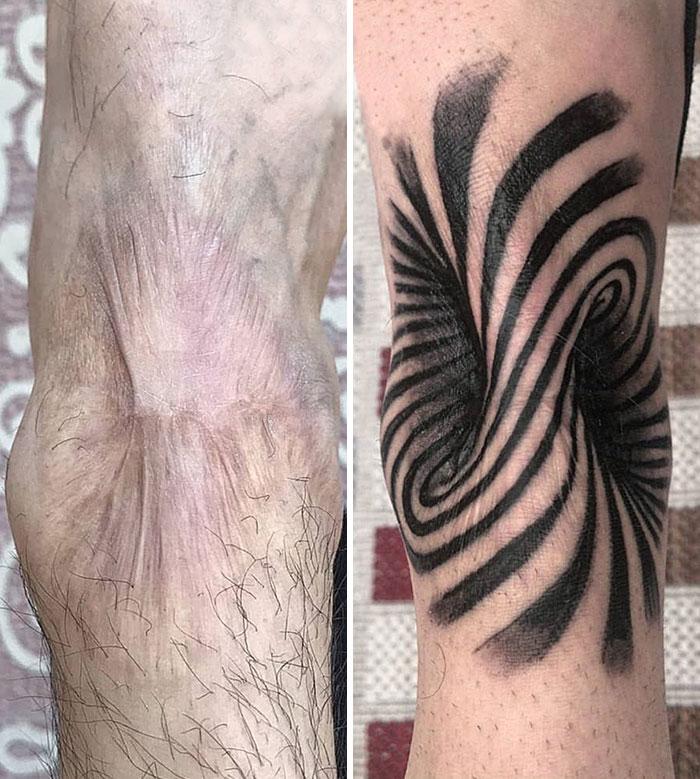 Tatuaje de cicatriz