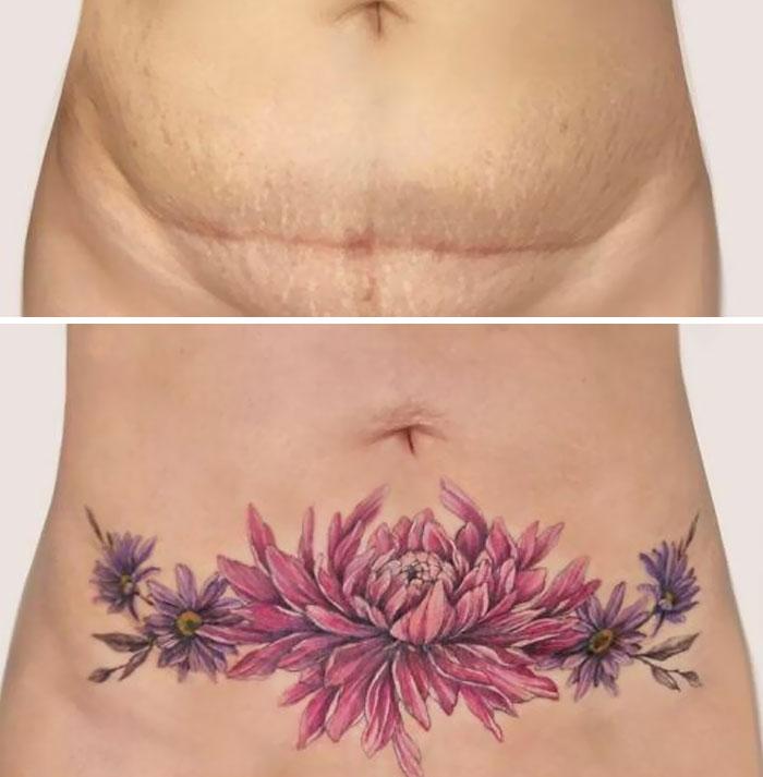 Tatuaje cubriendo una cesárea
