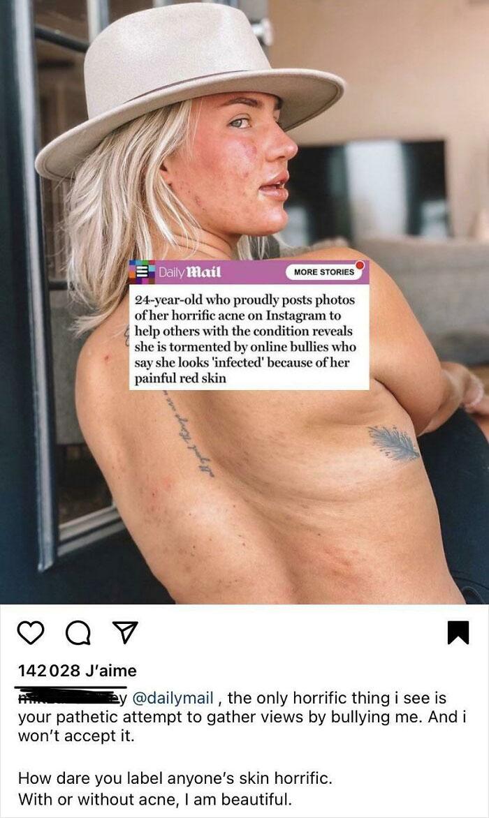 'Belleza real': 45 fotos compartidas en 'Instagram vs.  Grupo de realidad que contrasta con las fotos con mucho Photoshop