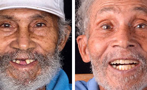 Brazilian Dentist Travels To Treat The Teeth Of Poor People For Free And Here Are 30 Transformations