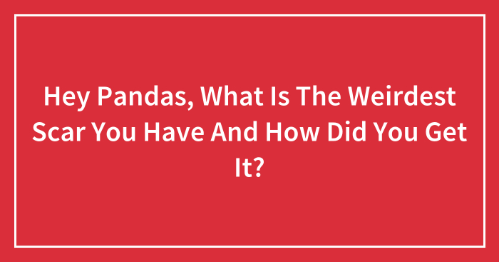 Hey Pandas, What Is The Weirdest Scar You Have And How Did You Get It? (Closed)