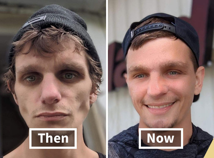 'The Addict's Diary': 30 Powerful Before & After Transformations Of Drug Addicts (New Stories)