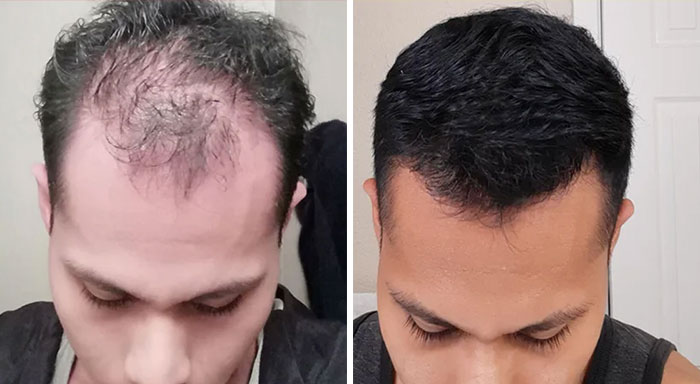 People Who Tried Out Hair Loss Treatments Are Sharing Their Results In This Dedicated Online Community (30 Pics)