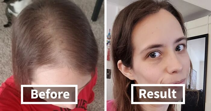 People Who Tried Out Hair Loss Treatments Are Sharing Their Results In This Dedicated Online Community (35 Pics)